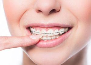 braces teeth on girl